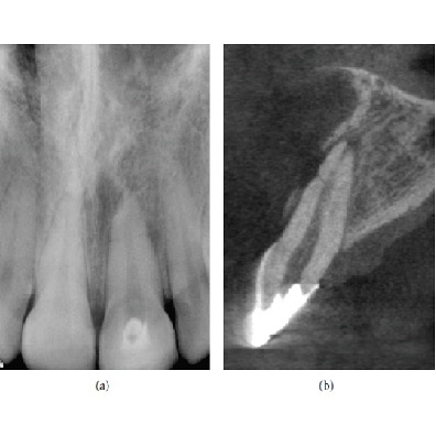 Image representing P570 Use of Cone Beam Computed Tomography in Endodontics