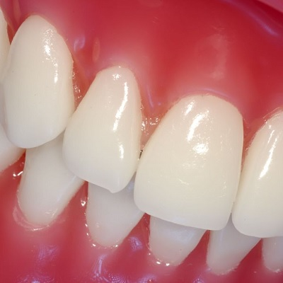 Image representing P669 Gingival Indices: State of Art