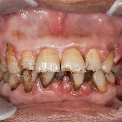 Image representing P705 Basic Oral Care for the Mouth Cancer Patient