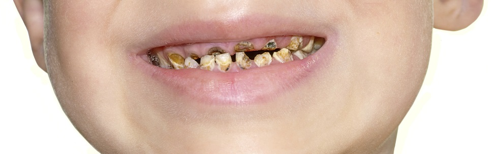 Image representing The campaign to reduce the number of children starting school with dental decay continues says BSPD